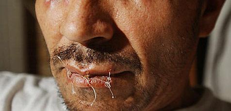 Mexikaner näht sich aus Frust den Mund zu