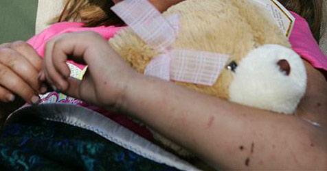 Mädchen bekommt Teddy nach 44 Tagen zurück