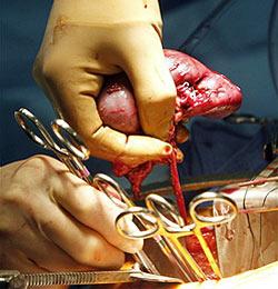 US-Arzt will seine gespendete Niere zurück