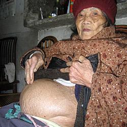 Chinesin war 60 Jahre lang schwanger (Bild: EuroPics (CEN))
