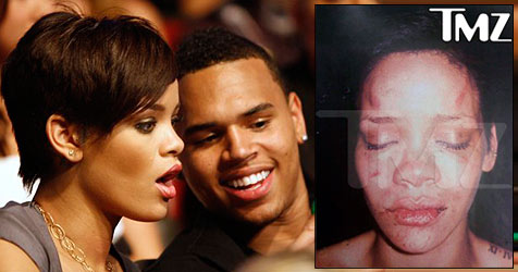 So schlimm sah Rihanna nach dem Streit aus (Bild: AP Photo; AP Photo/TMZ.com)