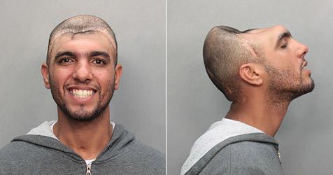 Polizeifoto: Mann mit halbem Kopf schockt USA (Bild: Miami Dade Police)