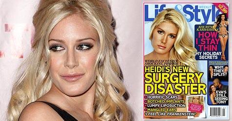 US-Starlet Heidi Montag bereut ihre Schönheits-OPs (Bild: AP, Cover: Life&Style)