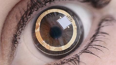 Sensor in Kontaktlinse misst Augeninnendruck (Bild: Sensimed)