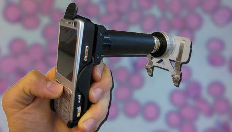 """""""CellScope"""" macht aus dem Handy ein Mikroskop (Bild: CellScope/David Breslauer)"""