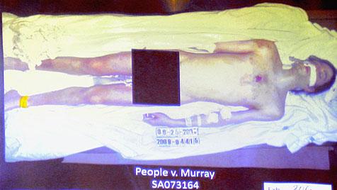 Anklage zeigt Jacksons nackten Körper bei Autopsie (Bild: EPA)