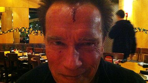 Schwarzenegger twittert Foto von Kopfverletzung (Bild: Twitter/Arnold Schwarzenegger)