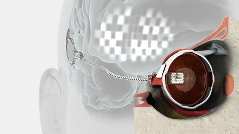 Erstes bionisches Auge der Welt implantiert (Bild: EPA)