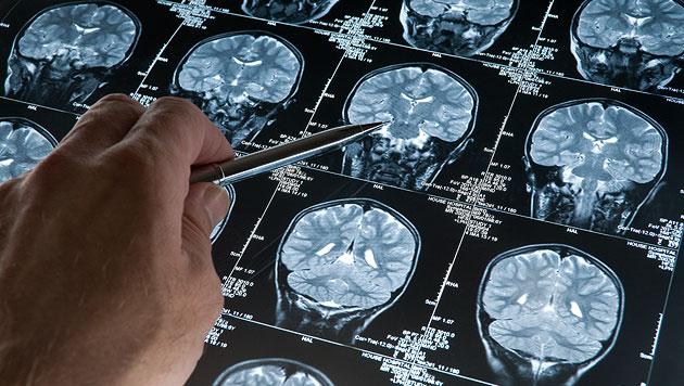 Warum uns Emotionales besser im Gedächtnis bleibt (Bild: thinkstockphotos.de (Symbolbild))