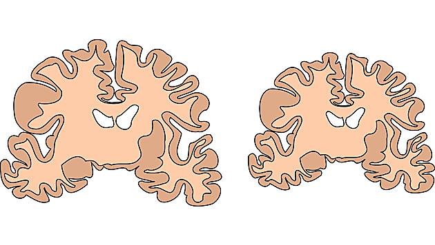Forscher fanden Schlüssel-Gen für Gehirnentwicklung (Bild: IMP)