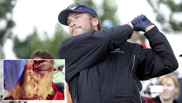 Skistar Bode Miller schie�t seine Gattin mit Golfball ab (Bild: EPA, twitter/morganebeck)