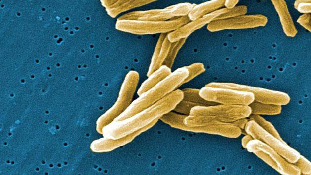 US-Beh�rde l�sst neues Medikament gegen TBC zu (Bild: CDC/Janice Carr)