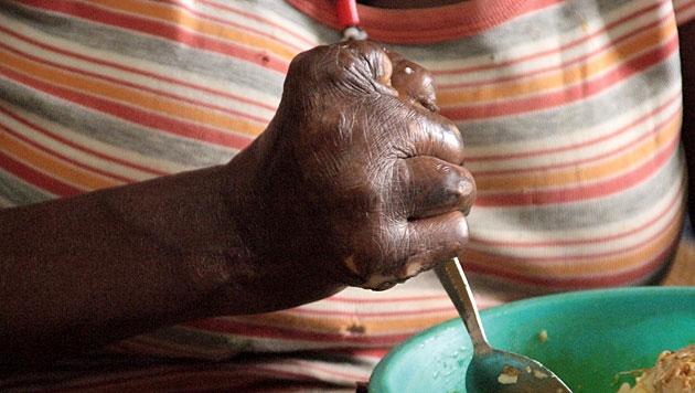 Anzahl der Lepra-Kranken weltweit wieder gestiegen (Bild: DAHW/Jochen H�vekenmeier)