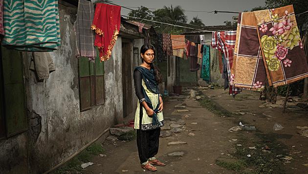 So leiden Opfer von Säureattacken in Bangladesch (Bild: Ken Hermann)