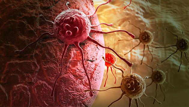 Künstlerische Illustration von Krebszellen (Bild: thinkstockphotos.de)