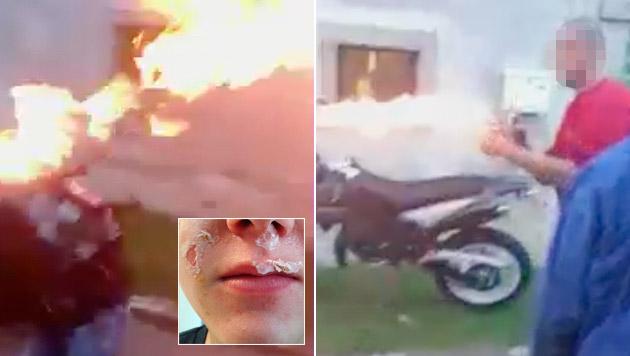 """15-jährigem Linzer aus Spaß das Gesicht verbrannt (Bild: """"Krone"""")"""