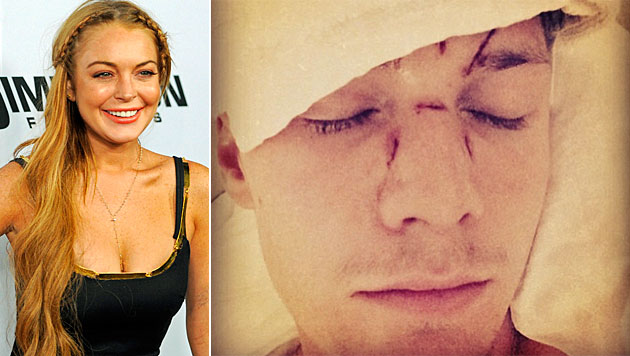 Ließ Lohan Hiltons Bruder verprügeln? (Bild: AP, Instagram)