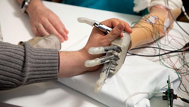 Neuartige Prothese ermöglicht Tasten und Fühlen (Bild: Patrizia Tocci, Science Translational Medicine)