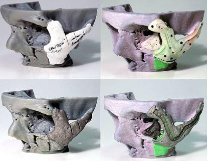 GB: Gesicht mittels 3D-Drucker wiederhergestellt (Bild: twitter.com/ABMhealth)