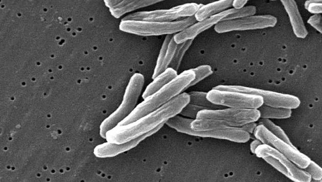 Tuberkulose-Alarm im Parlament (Bild: CDC/Dr. Ray Butler und Janice Carr)