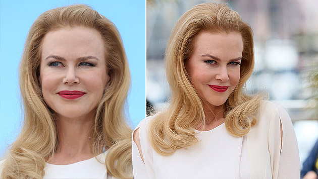 Völlig entstellt: Botox-Drama bei Nicole Kidman (Bild: AP, krone.at-Grafik)