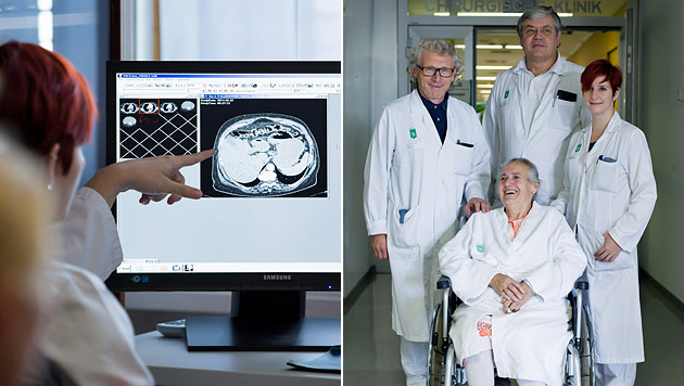 Das Ärzteteam am LKH Graz entfernte der 75-Jährigen den acht Kilogramm schweren Tumor. (Bild: APA/LKH-UNIV. KLINIKUM GRAZ/MARIJA KANIZAJ)