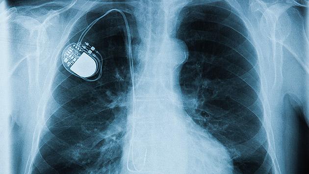 Hacker könnten Implantate als Waffe verwenden (Bild: thinkstockphotos.de)