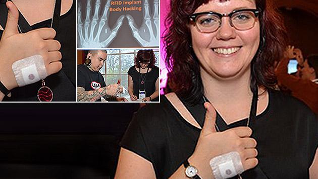 Frau ließ sich Chip als Büroschlüssel einpflanzen (Bild: Mikael Hansson/infotechumea.se)