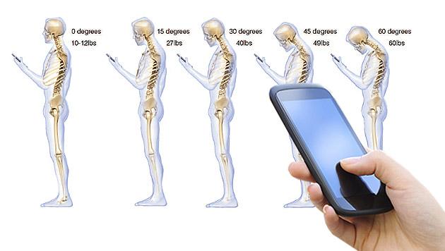 Mediziner warnen vor Handy-Nacken bei Jugendlichen (Bild: KENNETH K. HANSRAJ/SURGICAL TECHNOLOGY INTERNATIONALXXV,thinks)