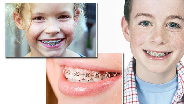 Vier Schritte zur Gratis-Zahnspange (Bild: thinkstockphotos.de)