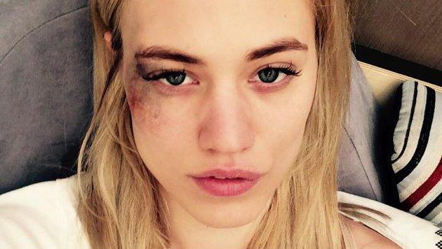 Auf Facebook zeigt sich Larissa Marolt mit einem blauen Auge und schreckt ihre Fans. (Bild: facebook.com)