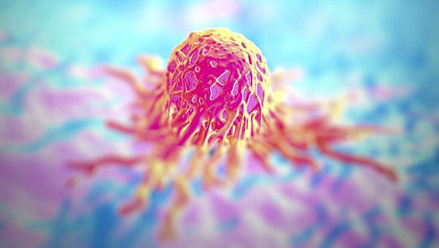 Neue Therapie kann Krebs im Endstadium heilen (Bild: thinkstockphotos.de (Symbolbild))