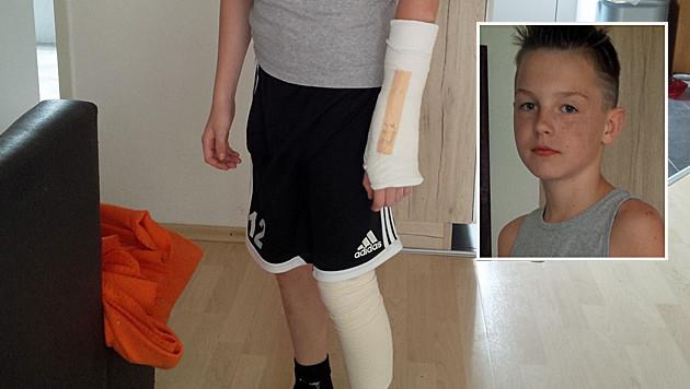 """Hendrik (12) trug Verletzungen an Arm und Bein davon. (Bild: """"Krone"""")"""