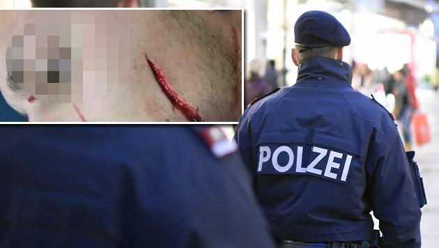 """Polizist mit Glasscherbe Gesicht zerschnitten (Bild: """"Krone"""", APA/HELMUT FOHRINGER)"""