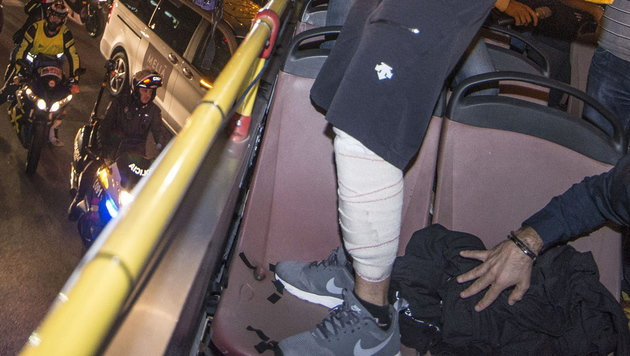 Jorge Lorenzo mit dickem Verband am linken Bein (Bild: APA/EPA/CATI CLADERA)