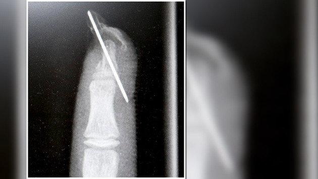 Das Fingerglied wird derzeit noch mit einem Metallstift fixiert. (Bild: Markus Tschepp)
