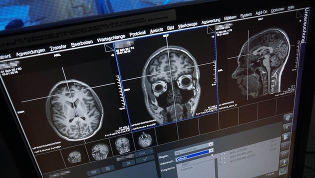 MRT-Aufnahme eines menschlichen Gehirns (Bild: Universität Jena/Jan-Peter Kasper)
