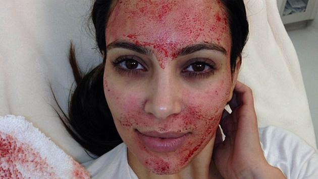 Kim Kardashian ließ sich das Vampir-Lifting einst im Gesicht machen. (Bild: Viennareport)