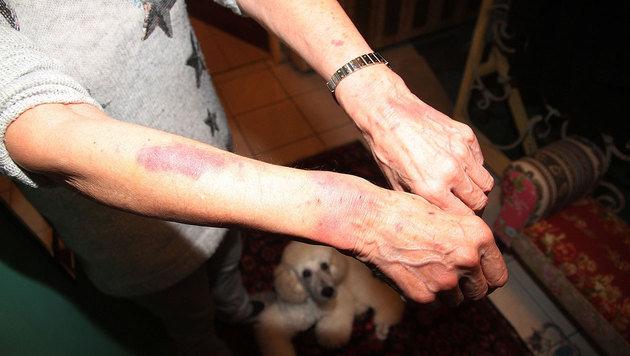 Die 70-Jährige ist aufgrund der Fesseln von Wundmalen übersät. (Bild: Andi Schiel)