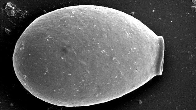 Elektronenmikroskopische Aufnahme von Nebela gimlii (Bild: Universität Neuenburg)