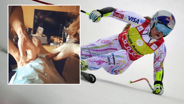 Schienbeinkopfbruch: Rätselraten um Vonns Knie (Bild: Instagram)