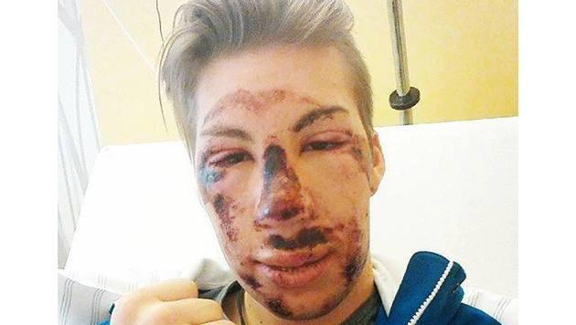 Skispringer Thomas Diethart postete nach seinem Horror-Sturz beim Kontinentalcup dieses Foto. (Bild: facebook.com)