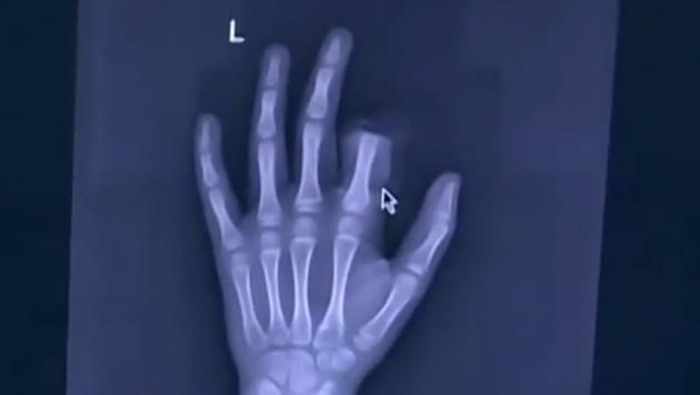 Spielte zu viel Handy: Bub schneidet Finger ab (Bild: news.sina.cn)