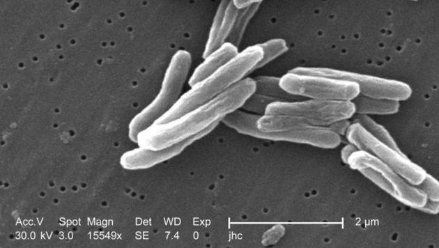 So sieht ein Tuberkulose-Erreger unter dem Mikroskop aus. (Bild: Elektromikroskopische Aufnahme)
