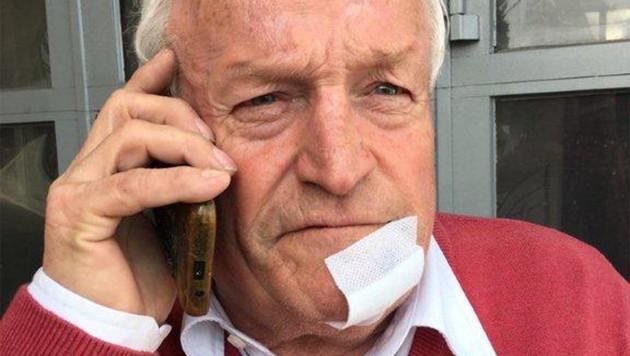 Der 70-jährige Augenzeuge Alois wurde verletzt, als er den Frauen helfen wollte. (Bild: Monika Kripser)