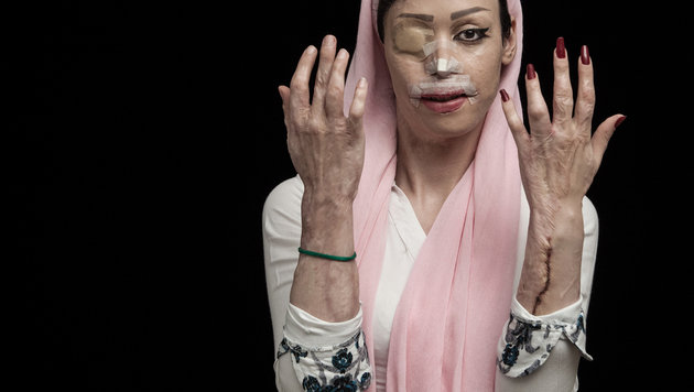 Fire of Hatred (Bild: © Asghar Khamseh, Iran, Shortlist, Professional , Contemporary I)