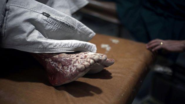 IS stürmt Spital - Personal in Geiselhaft (Bild: APA/AFP/AMER ALMOHIBANY (Symbolbild))