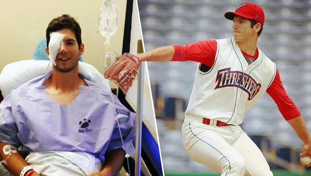 US-Baseball-Star verliert Auge beim Stretching (Bild: instagram.com)