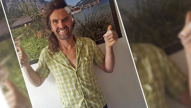 Thomas Huber: Beide Daumen oben, trotz Schädelbruch. (Bild: Screenshot Facebook.com)