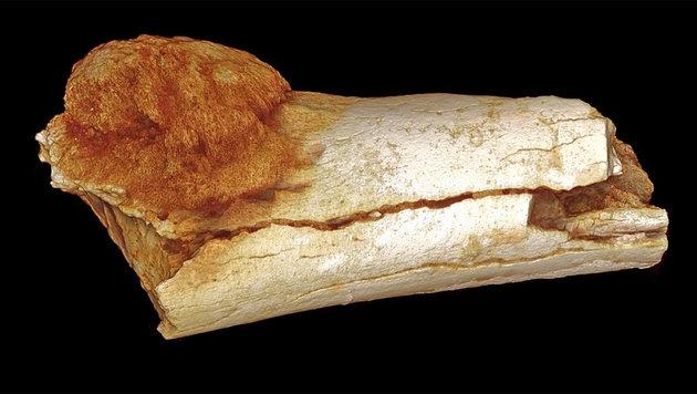 B�sartiger Tumor in 1,7 Mio. Jahre altem Knochen (Bild: YouTube.com/Wits University Official)